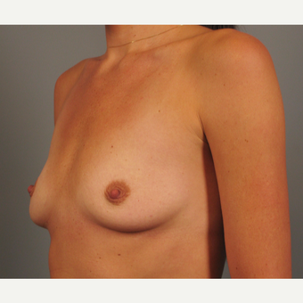 25-34 year old woman treated with Endo-Axillary Breast Augmentation before 3258337