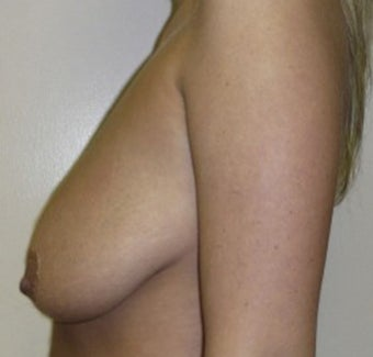Breast Augmentation and Breast Lift 735337
