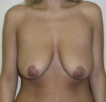 Breast Augmentation and Breast Lift before 735337