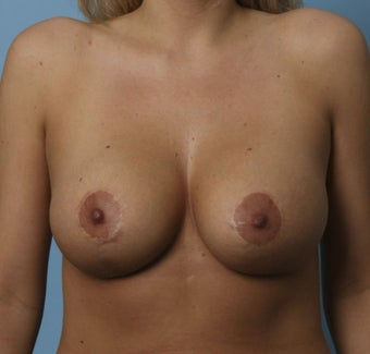 Breast Augmentation and Breast Lift after 735337