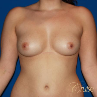 25 year old woman treated with Silicone Breast Implants before 3833285