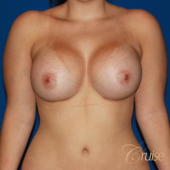25 year old woman treated with Silicone Breast Implants after 3833285