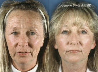 Upper Blepharoplasty and Full Face Laser Resurfacing before 106313