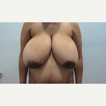 25-34 year old woman treated with Breast Reduction before 3059952