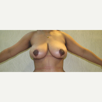 25-34 year old woman treated with Breast Reduction after 3059952