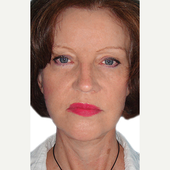 65 year old woman treated with Brow Lift