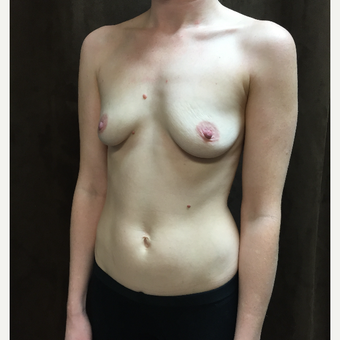 25-34 year old woman treated with Breast Augmentation before 3027383