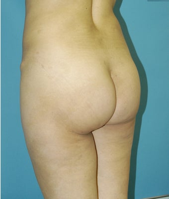 25-34 year old woman treated with Butt Implants