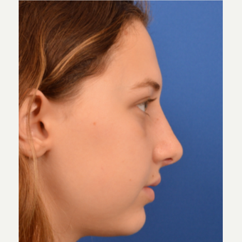 18-24 year old woman treated with Rhinoplasty after 3220365