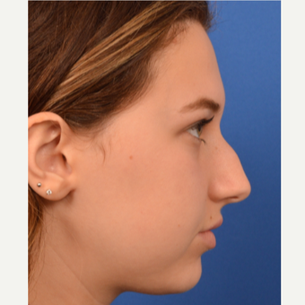 18-24 year old woman treated with Rhinoplasty before 3220365
