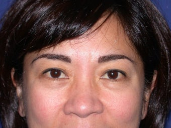 Eye bags treatment: Fat transfer to tear troughs before 83398