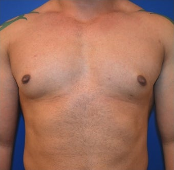 Young Male Treated for Large Breasts before 1367257