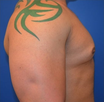 Young Male Treated for Large Breasts 1367257