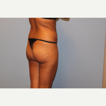 25-34 year old woman treated with Brazilian Butt Lift before 3565726