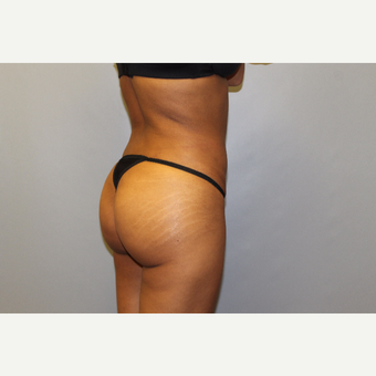 25-34 year old woman treated with Brazilian Butt Lift after 3565726