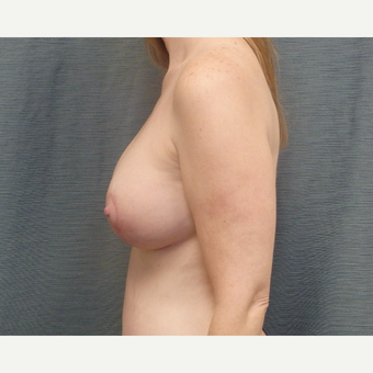 39 year-old woman treated with Breast Lift with Implants after 3507383