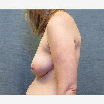 39 year-old woman treated with Breast Lift with Implants before 3507383