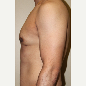 35-44 year old man treated with Male Breast Reduction after 3215430