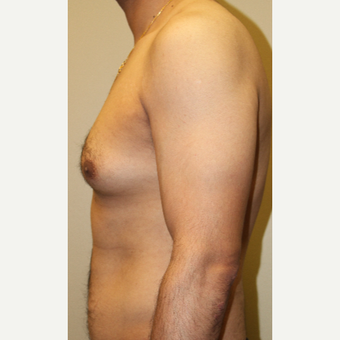 35-44 year old man treated with Male Breast Reduction before 3215430