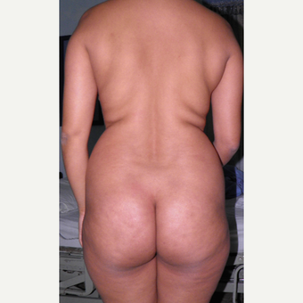 25-34 year old woman treated with Liposculpture and Brazilian Butt Lift before 3103865