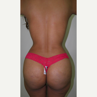 25-34 year old woman treated with Liposculpture and Brazilian Butt Lift after 3103865
