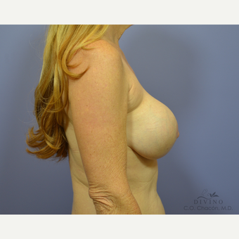 55-64 year old woman treated with Breast Lift before 3420128
