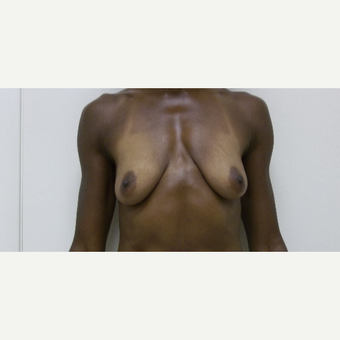45-54 year old woman treated with Breast Lift with Augmentation before 2988749