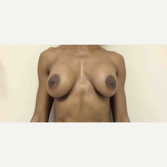 45-54 year old woman treated with Breast Lift with Augmentation after 2988749
