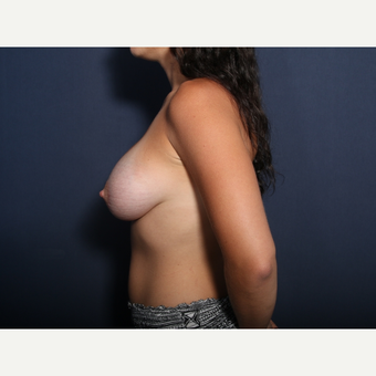 25-34 year old woman treated with Breast Lift with Implants (view 2 of 2) after 3425440