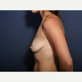 25-34 year old woman treated with Breast Lift with Implants (view 2 of 2) before 3425440