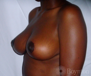 Breast Lift after 1155499