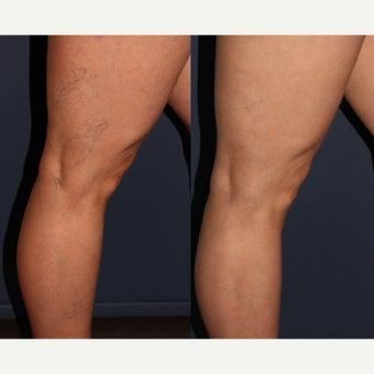 35-44 year old woman treated with Sclerotherapy before 1549848