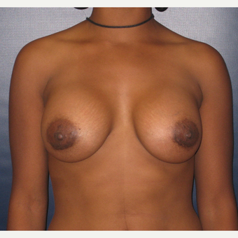 25-34 year old woman treated with Breast Augmentation after 3455181
