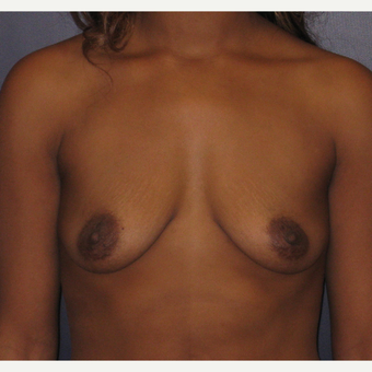 25-34 year old woman treated with Breast Augmentation before 3455181