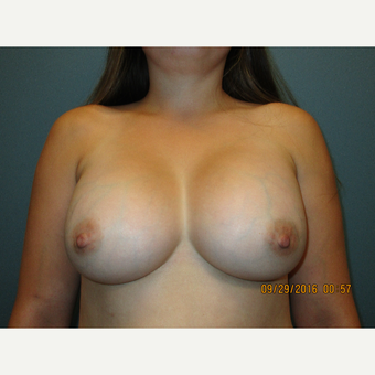 25-34 year old woman treated with Breast Lift after 3769747