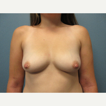 25-34 year old woman treated with Breast Lift before 3769747