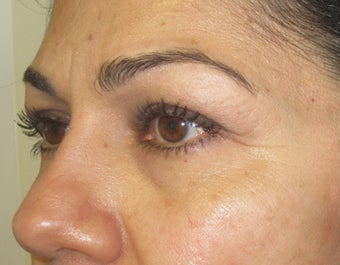 42 year old female with eyelid bags before 811429