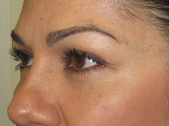 42 year old female with eyelid bags after 811429