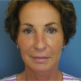55-64 year old woman treated with Facelift and Upper Eyelid Lift after 3651750