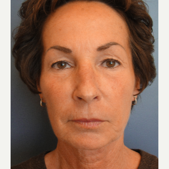 55-64 year old woman treated with Facelift and Upper Eyelid Lift before 3651750