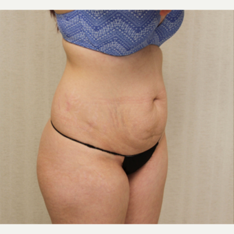 18-24 year old woman treated with Tummy Tuck before 3684719