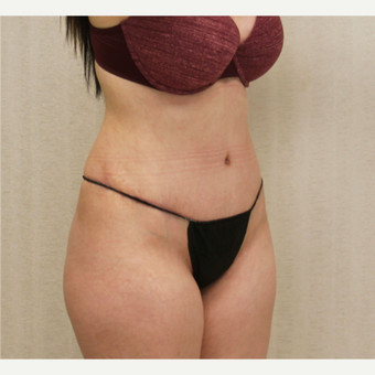 18-24 year old woman treated with Tummy Tuck after 3684719