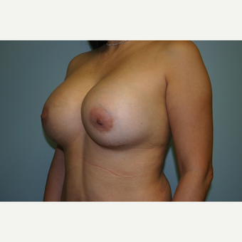 Breast Augmentation after 3553594