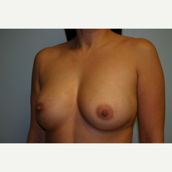 Breast Augmentation before 3553594