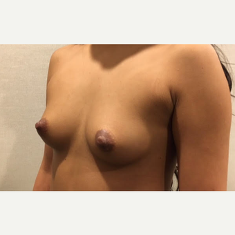 18-24 year old woman treated with Breast Augmentation before 3738063