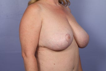 Breast Reduction after 687552