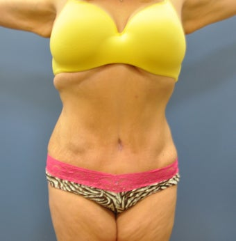 Hourglass Tummy Tuck by Dr. Wilberto Cortes after 371929