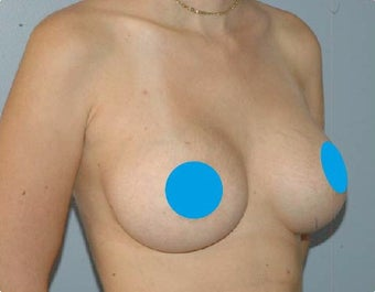 25-34 year old woman treated with Breast Augmentation with lift after 3374846