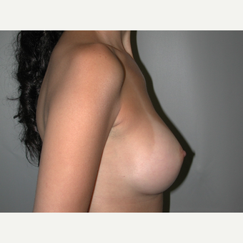 25-34 year old woman treated with Breast Implants after 3765878