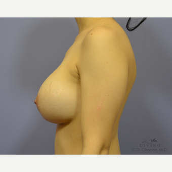 25-34 year old woman treated with Breast Augmentation after 3329320